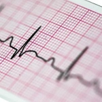 Papier EKG 60x10 - do Aparatów EKG Ascard 31