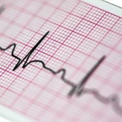 Papier EKG 210x25 - do Aparatów EKG Serii Gold