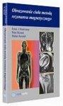 Obrazowanie ciała metodą rezonansu magnetycznego