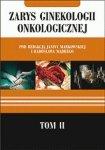 Zarys ginekologii onkologicznej tom 2