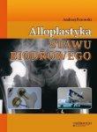 Alloplastyka stawu biodrowego /Górnicki