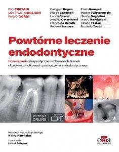 Powtórne leczenie endodontyczne