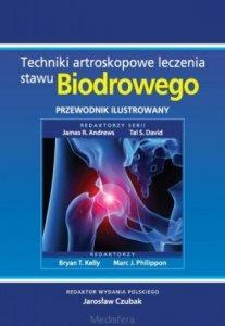 Techniki artroskopowe leczenia stawu biodrowego Przewodnik ilustrowany