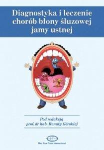 Diagnostyka i leczenie chorób błony śluzowej jamy ustnej