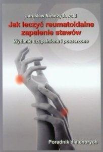 Jak leczyć reumatoidalne zapalenie stawów Poradnik dla chorych