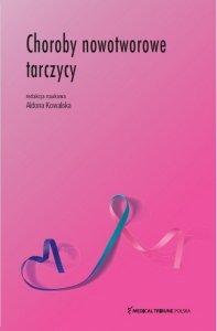 Choroby nowotworowe tarczycy