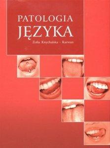 Patologia języka