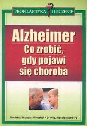 Alzheimer Co robić gdy pojawi się choroba
