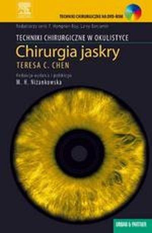 Chirurgia jaskry Seria Techniki Chirurgiczne w Okulistyce