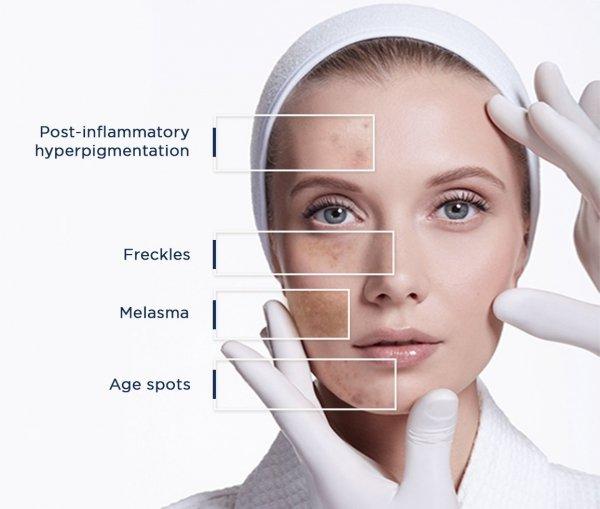 serum wybielające skórę twarzy Rilastil krem na przebarwienia