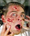 Sztuczna rana - Poparzenia