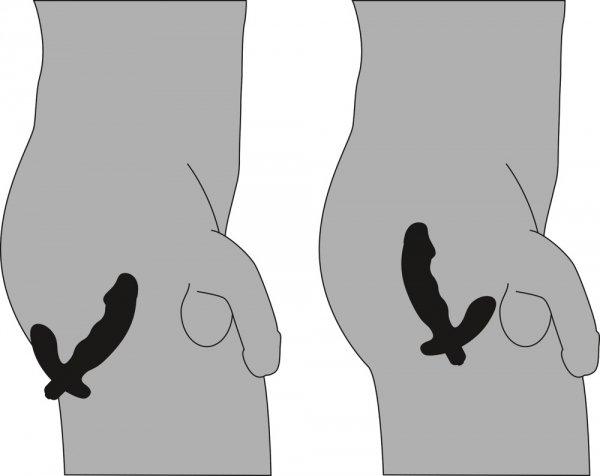 Stymulator prostaty REBEL użycie