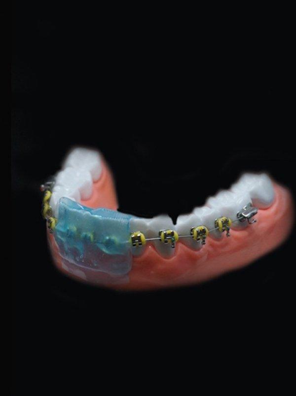 Ochraniacz na zęby Silverstein OmniGuard