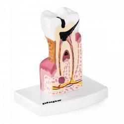 Chory ząb - model anatomiczny PHYSA 10040250 PHY-TM-1